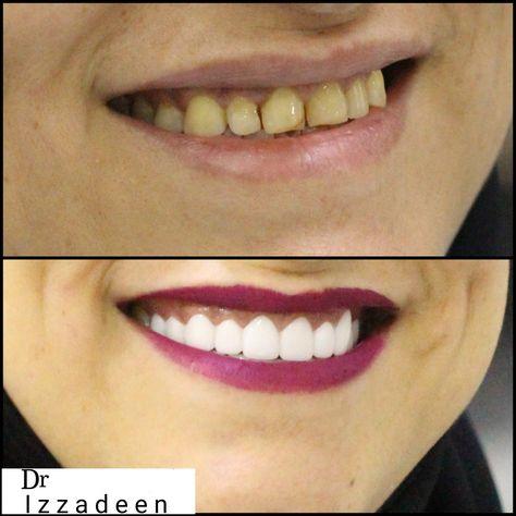 طبيب أسنات أفضل طبيب اسنان ابتسامه ابتسامه هوليود تبيض أسنان دكتور عزالدين عز مانشستر مركز طبيب الامارات الشارقه سعر افضل فينير عدسا Teeth Dental Beauty Eyes