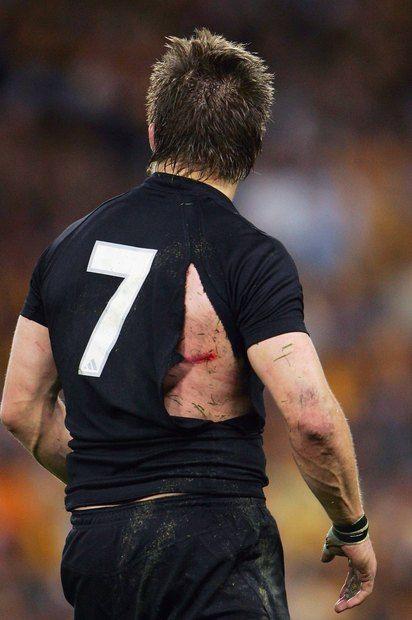 Richie McCaw was cut during the Tri Nations series Bledisloe Cup match against Australia.  Photo / File