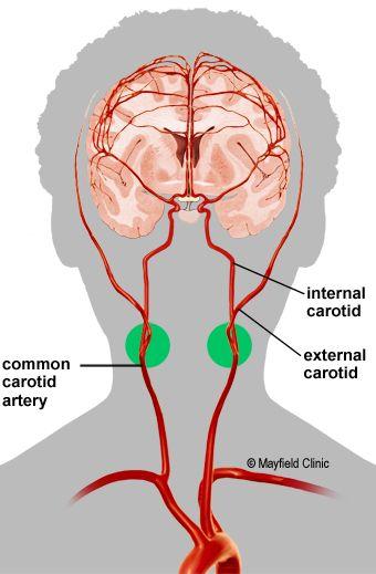 Carotid Anatomy Carotid Artery Stenosis Arteries