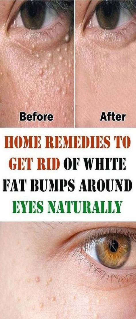 How To Get Rid Of Milia Under Eyes Naturally