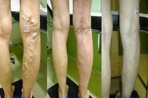 La Roche-Posay Effaclar mitesszerek Mitesszerek és zsíros bőr ellen