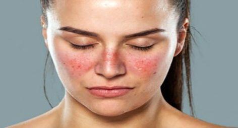 الأدوية اللازمة لعلاج الذئبة الحمراء الأدوية اللازمة لعلاج الذئبة الحمراء ما هو مرض الذئبة الحمراء عند ال Lupus How To Feel Beautiful Lupus Rash
