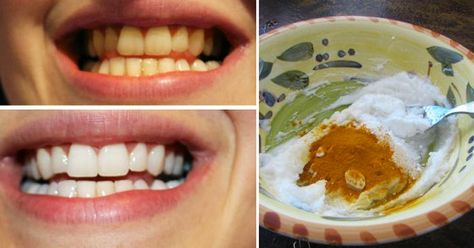 This actually works...INCREDIBLE! 1 tsp coconut oil, 1/2-1 tsp tumeric powder, and a bit of peppermint oil. Brush teeth and let set for 3-5 minutes and rinse.