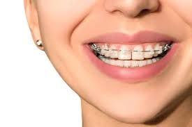 Best Dental Insurance For Braces Near Me With Images