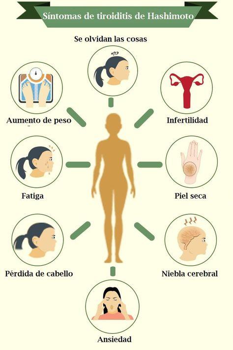 Tiroiditis hashimoto y perdida de peso
