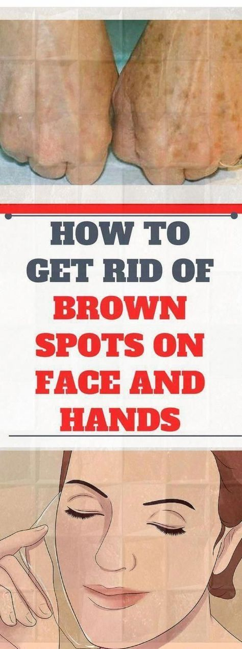 How to Get Rid of Brown #spots on Face and Hands #HowToGetRidOfAcneScars #BeautyHacksFaceGreat. #healthandfitness #CanBrownSpotsOnFaceBeRemoved #DarkBrownSpotsOnFace #BestForBrownSpotsOnFace