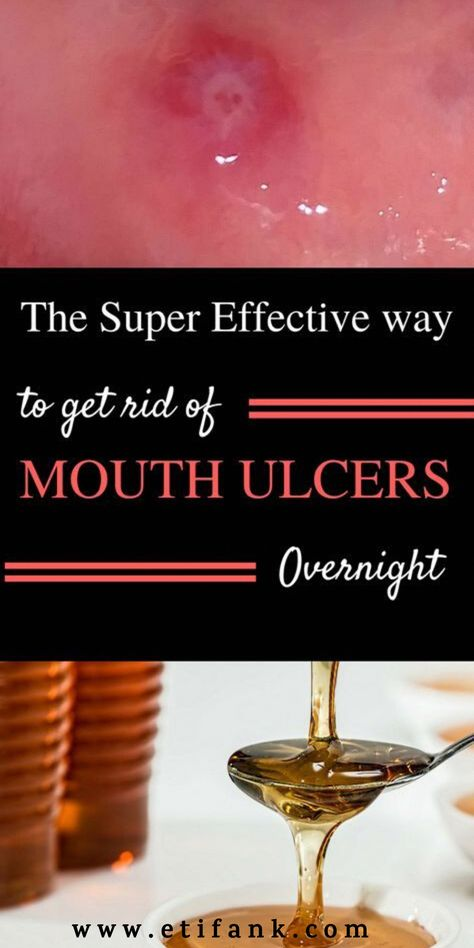 Mouth ulcers are no joke! The sores can be extremely painful and you will often find yourself struggling to eat or even speak...  #ulcer #mouth #teeth #remedies #naturals #health #HowMuchIsTheOralCareMarketWorth #WhyIsOralCareSoImportant #DoOralCare
