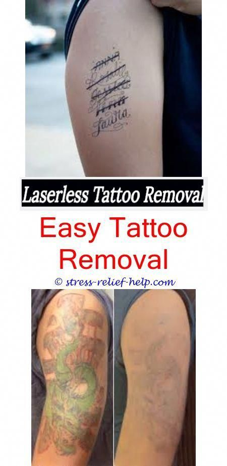 Pin On Tattoo Removal