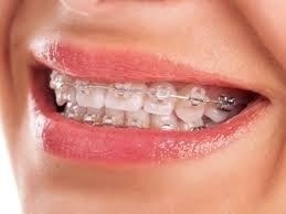 Clear Ceramic Braces Near Me Teeth Braces How Much Braces Cost Dental Braces