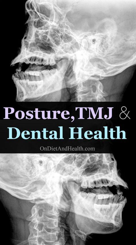 Posture,TMJ and Dental Health
