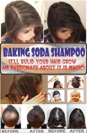 Baking Soda For Hair Growth Reviews Baking Soda For Hair Side