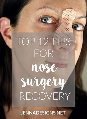 Top 12 Tips for Nose Surgery Recovery   Nos   Nose surgery