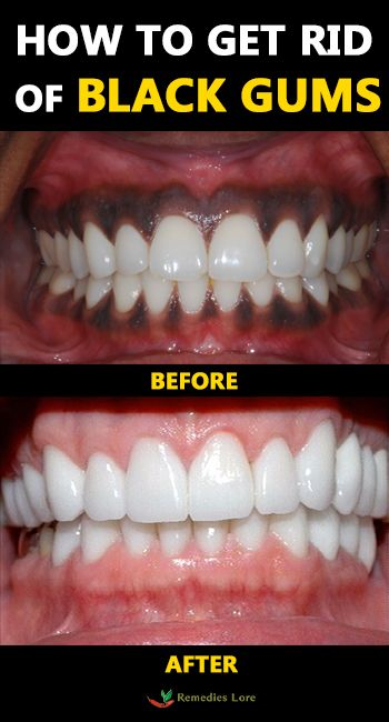 f1b37d702e571c382f4a695d194b1c72 - How To Get Rid Of Black Stains On Your Teeth