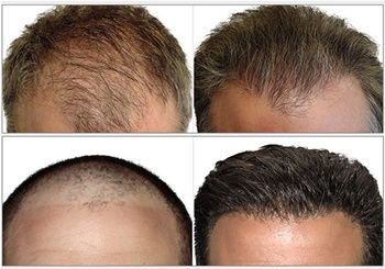 All About Male Pattern Hair Loss And How To Treat It The Good