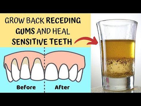 Heal Receding Gums and Grow Back - Treat Sensitive Teeth and Reverse Receding Gums - Gingivitis Gum Health, Teeth Health, Healthy Teeth, Dental Health, Oral Health, Dental Care, Reverse Receding Gums, Grow Back Receding Gums, Receeding Gums