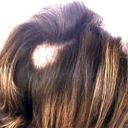 Hair diseases are disorders primarily associated with the hair diseases are disorders primarily associated with the follicles of the hair many hair diseases can be associated with distinct underlying diso urmus Choice Image