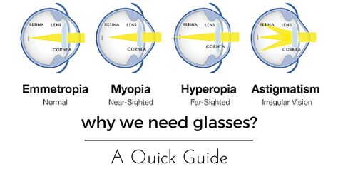myopia asztigmatizmus hyperopia maratoni látás helyreállítása