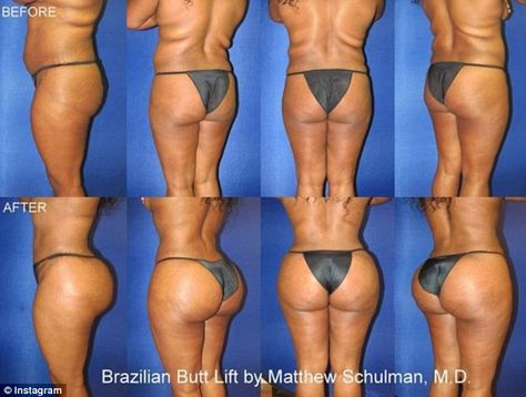 Contrast: Dr Schulman shares dramatic before and after pictures, such as this on… Contrast: Dr Schulman shares dramatic before and after pictures, such as this one, pictured, of a woman who had litres of her own fat reinjected into her hips and buttocks