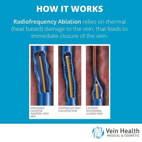 varicoseveins Radiofrequency Ablation relies...