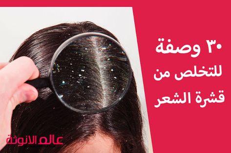 عالم الانوثة 30 وصفة للتخلص من قشرة الشعر الحل الاكيد والنهائ Dandruff Treatment Dandruff Treatment