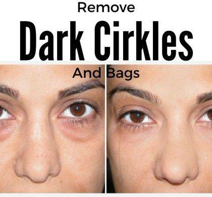 f345cb157a9af1e26c3354d0777f3112 - How To Get Rid Of Black Eyes From No Sleep