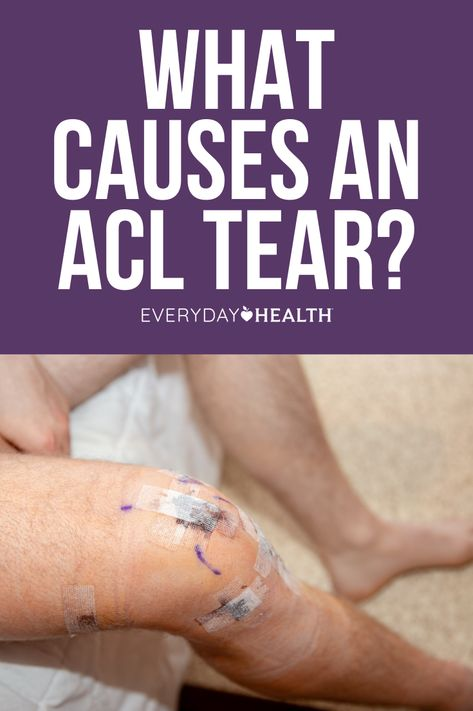 An ACL tear, or torn anterior cruciate ligament, is one of the most common knee injuries.