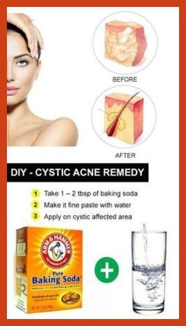 Homemade Acne Remedies Home Made Acne Treatments Follow These