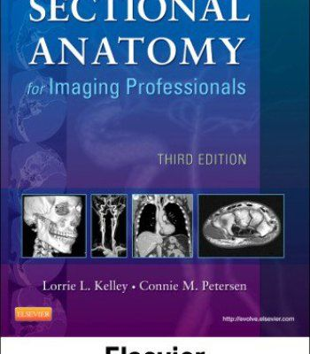 Mosby S Radiography Online For Sectional Anatomy For Imaging Professionals Access Code Textbook And Workbook Package 3e Pdf Workbook Professional Books Books To Read Online