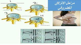 مراحل الانزلاق الغضروفي بالصور الدسك Herniated Disc Herniated