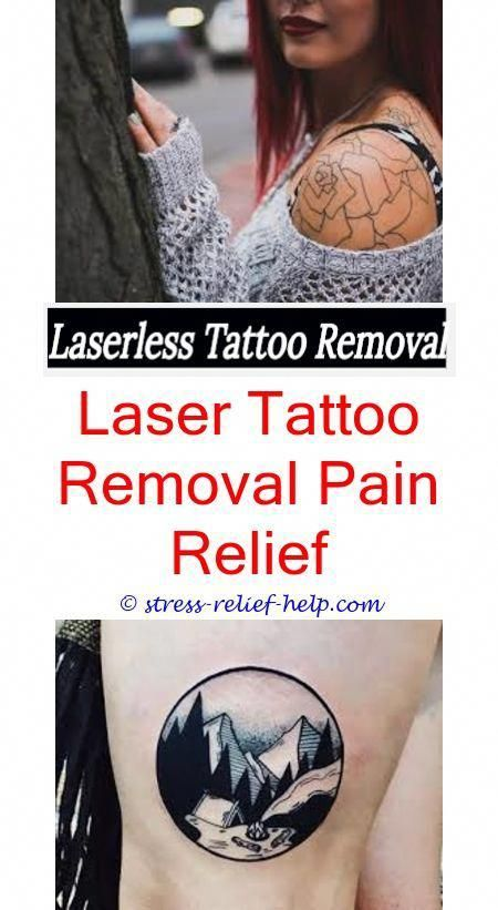 Tattoo removal omaha.Does laser removal for tattoos work.Tattoo ...