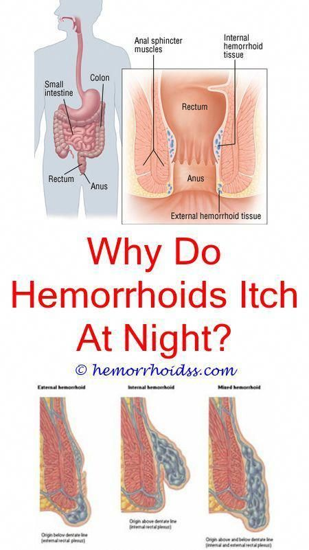 Get Rid Of Varicose Veins Can U Push External Hemorrhoids Back In