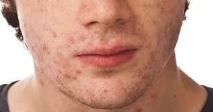أفضل كريم تقشير الوجه للرجال لعلاج مشاكل الوجه