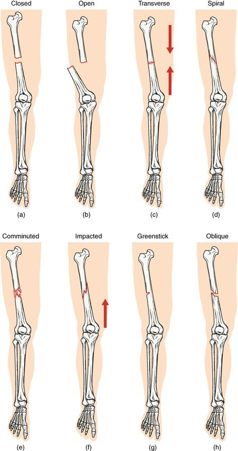 Types Of Fractures In Human Body . Types Of Fractures In Human Body 65 Fractures Bone Repair Anatomy And Physiology Medical Facts, Medical Information, Types Of Fractures, Anatomy Bones, Anatomy Organs, Radiology Student, Types Of Bones, Bone Fracture, Nursing