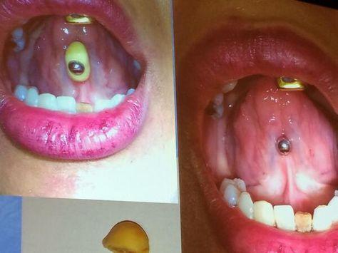Tongue ring calculus cleaned at dental checkup.