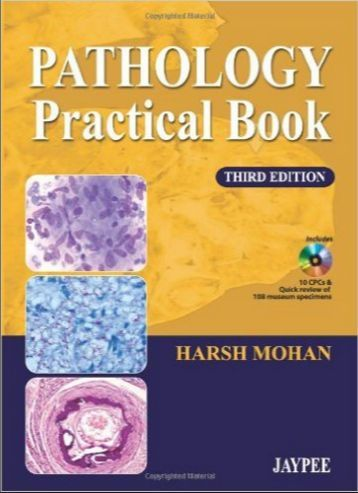 Pathology Practical Book 3rd Edition Pdf Harsh Mohan 93 Mb Pdf I D Like To Thank You For Clicking Like And G 1 Bu Medical Textbooks Pathology Free Medical