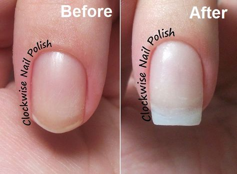 Broken Nail Now What Nail Tip Acrygel Overlay Tutorial The