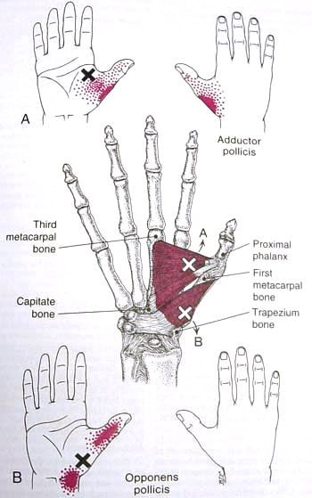 Adductor & Opponens Pollicis Trigger Point Diagram