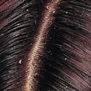 Get rid of dandruff completely home remedies dandruff get rid of dandruff completely home remedies dandruff remedies and natural curly hair ccuart Images