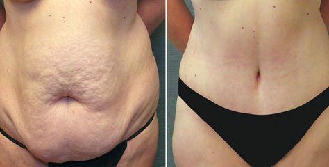 Abdominoplastia Informacoes Precos E Fotos Antes E Depois