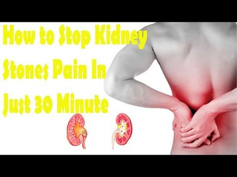 kidney stone pain location pictures