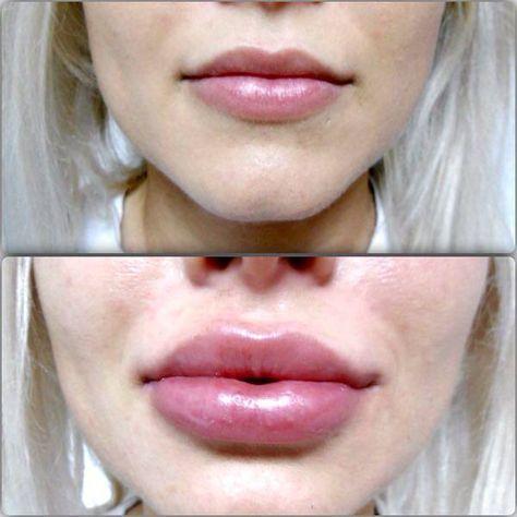 Marirea buzelor cu acid hialuronic este noul trend. Daca nu esti multumita de buzele tale, poti apela oricand la interventiile cu acid hialuronic!  Imaginea reprezinta: Inainte de injectare- in partea de sus iar in partea de jos IMEDIAT dupa injectare, cu 1 ml de acid hialuronic gama Princess.  Luna aceasta iti oferim REDUCERI la interventiile cu acid hialuronic - 700 LEI, PRET REDUS!!!!!! Informatii si programari: 0724 269 229 sau mesaj privat!Zona Stefan cel Mare, Sector 2