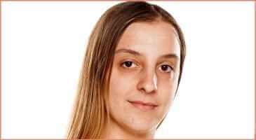 العلاجات المنزلية للهالات السوداء تحت العيون Dark Circles