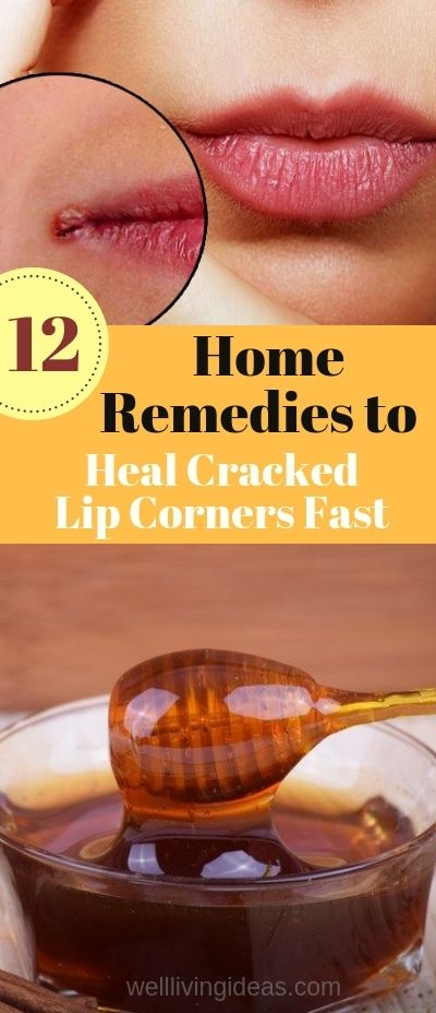 How To Heal Cracked Lip Corners Fast And Naturally Best Home