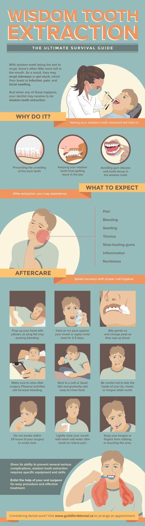 Wisdom teeth wisdom teeth remedies