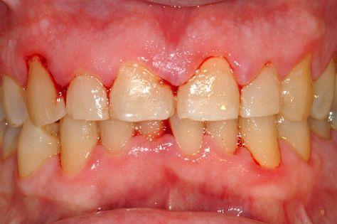 enfermedades que causan sangrado en las encías