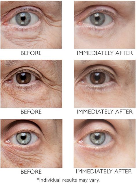Youth Celluvation Forever young skin without plastic surgery and fillers Forever young skin without plastic surgery and fillers Available Now Under Eye Wrinkles, Under Eye Puffiness, Brown Spots On Skin, Skin Spots, Brown Skin, Under Eye Bags, Puffy Eyes, Droopy Eyes, Beauty