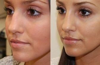 London Cosmetic Clinic on the Gold Coast is the the leading