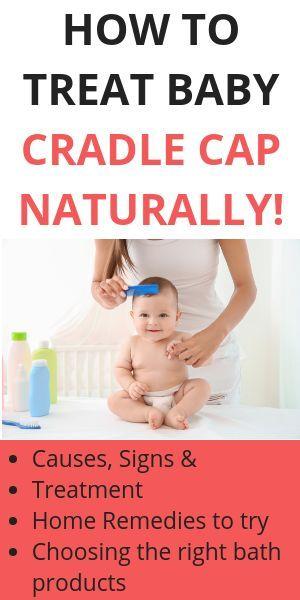 Natural Cradle Cap Remedies That Work Like A Charm Cradle Cap Remedies Baby Cradle Cap Remedies Baby Cradle Cap