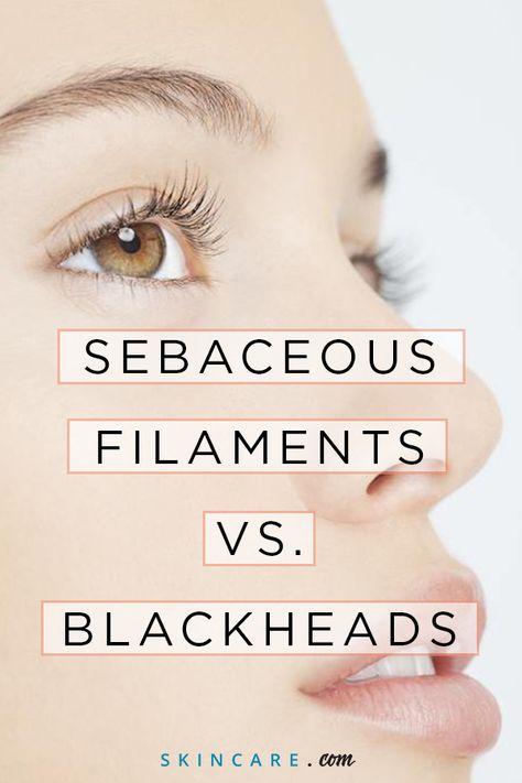 List of Pinterest sebaceous filaments tips images & sebaceous