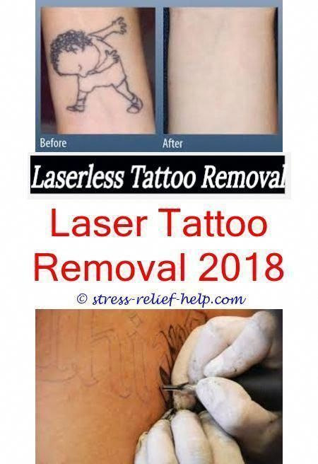 Tattoo Removal Near Me Does Tattoo Removal Gel Work How Many Sessions Does It Ta Gel Medoes Removal Sessions Ta Tattoo Work Tattoo Removal Laser Tattoo Removal Price Tattoo Removal Cost Tattoo